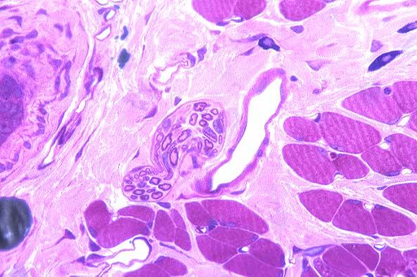 nervefibrar og muskelfobrar